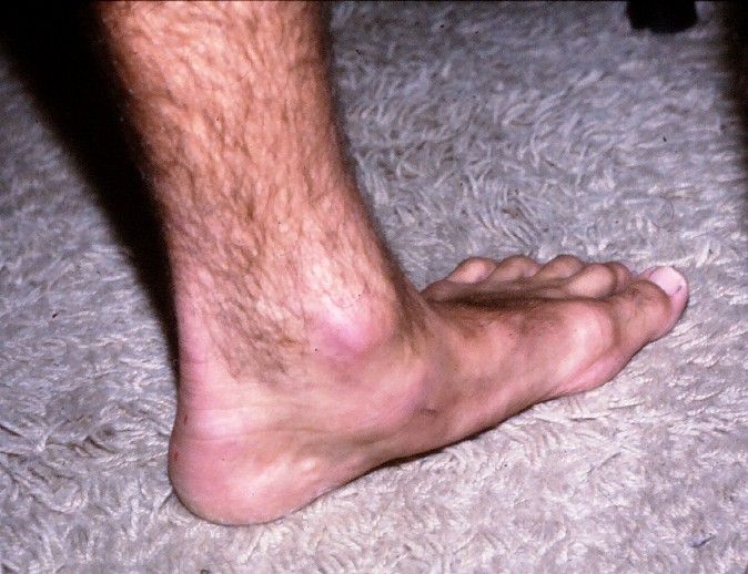 Lower Achilles heel pain in an excessively pronated foot